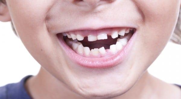 Crescita dei denti nei bambini: problemi e soluzioni