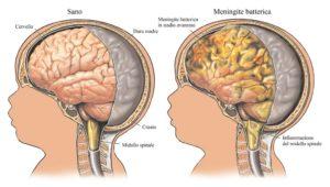 Il vaccino contro la meningite: perché è importante farlo