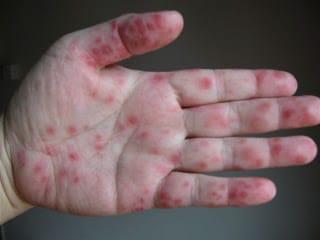 Virus mani bocca piedi: cos'è, sintomi e come curarlo